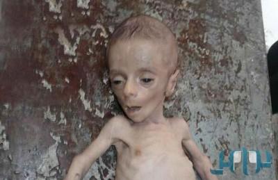 أمين عام الأمم المتحدة: استخدام التجويع في سوريا جريمة حرب