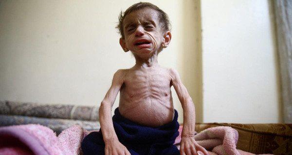 الموت يهدد أطفال الغوطة الشرقية وسط عجز دولي عن انقاذ البشر
