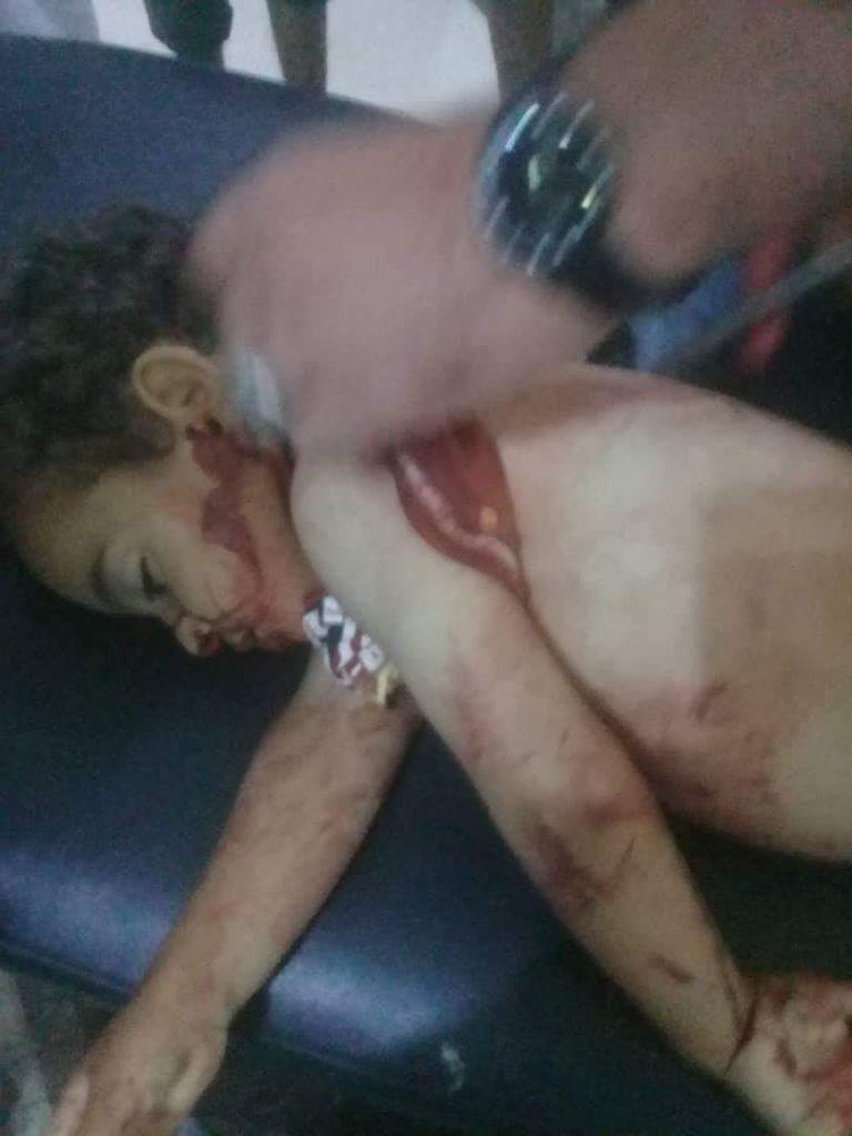 """مقتل طفلة برصاص """"قسد"""" بريف دير الزور الشرقي"""